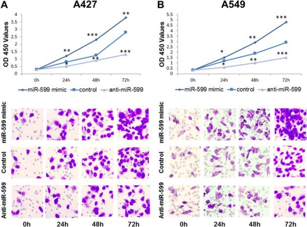 The miR-599 promotes non-small cell lung cancer cell invasion via SATB2