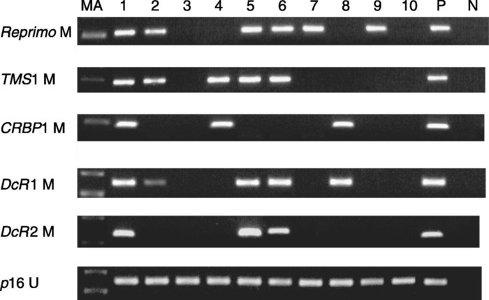 Methylation of apoptosis related genes in the pathogenesis and prognosis of prostate cancer