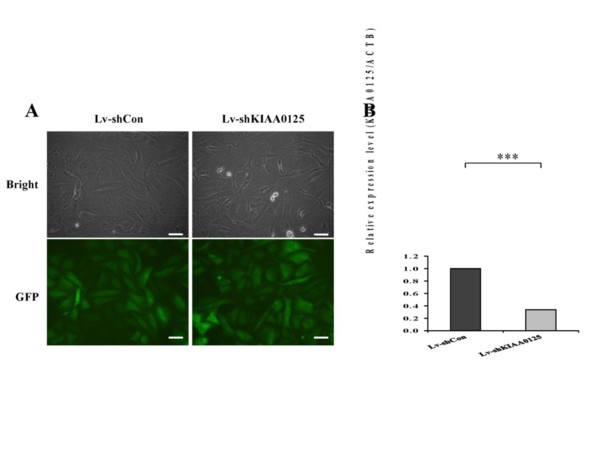 Long Noncoding RNA KIAA0125 Potentiates Cell Migration and Invasion in Gallbladder Cancer