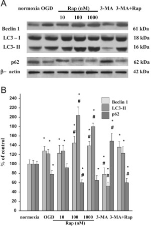 Rapamycin induces of protective autophagy in vascular endothelial cells exposed to oxygen–glucose deprivation