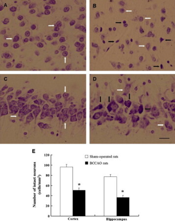Neuronal damage, central cholinergic dysfunction and oxidative damage correlate with cognitive deficits in rats with chronic cerebral hypoperfusion