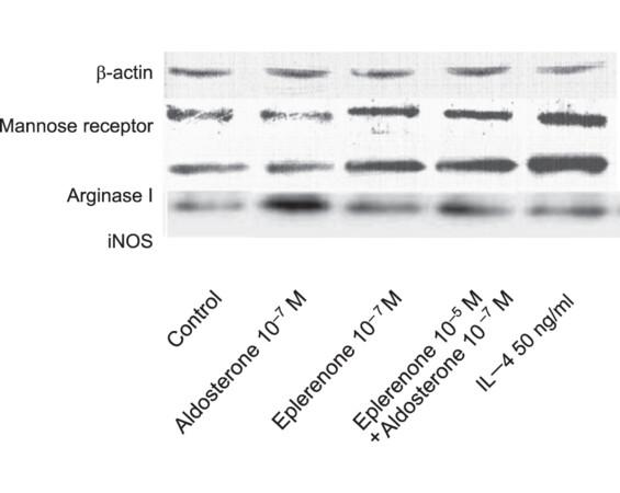 Eplerenone promotes alternative activation in human monocyte-derived macrophages