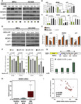 Downregulation of p53-inducible microRNAs 192, 194, and 215 Impairs the p53/MDM2 Autoregulatory Loop in Multiple Myeloma Development