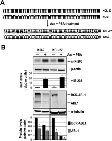 Genetic and Epigenetic Silencing of MicroRNA-203 Enhances ABL1 and BCR-ABL1 Oncogene Expression