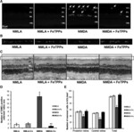 Neurovascular Protective Effect of FeTPPs in N-Methyl-D-Aspartate Model: Similarities to Diabetes