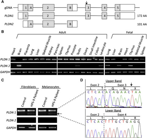 A BLOC-1 Mutation Screen Reveals that PLDN Is Mutated in Hermansky-Pudlak Syndrome Type 9
