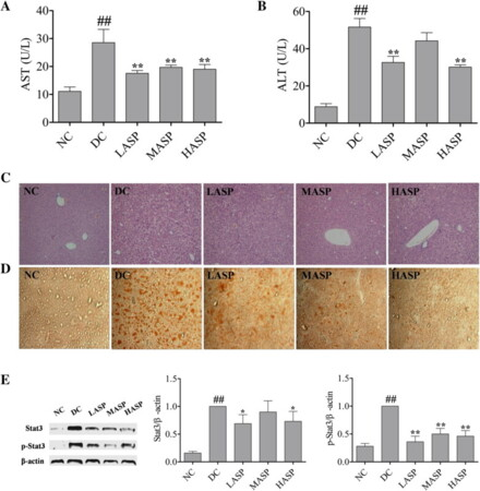 Polysaccharide from Angelica sinensis ameliorates high-fat diet and STZ-induced hepatic oxidative stress and inflammation in diabetic mice by activating the Sirt1–AMPK pathway