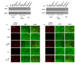 DA Negatively Regulates IGF-I Actions Implicated in Cognitive Function via Interaction of PSD95 and nNOS in Minimal Hepatic Encephalopathy