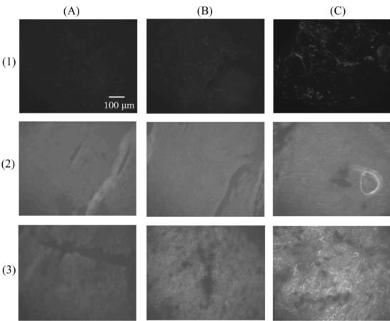 Tumor targeting of gene expression through metal-coordinated conjugation with dextran