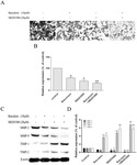 Baicalein Reduces the Invasion of Glioma Cells via Reducing the Activity of p38 Signaling Pathway