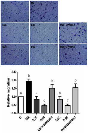 Effects of Eicosapentaenoic Acid and Docosahexaenoic Acid on Prostate Cancer Cell Migration and Invasion Induced by Tumor-Associated Macrophages