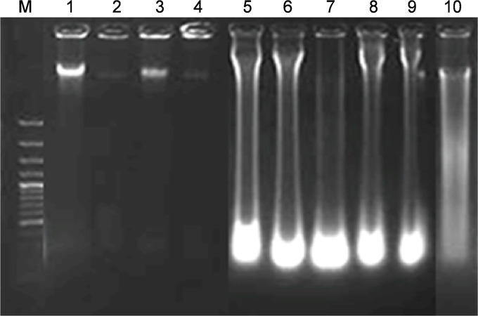 Chicory (Cichorium intybus L.) Root Extract Regulates the Oxidative Status and Antioxidant Gene Transcripts in CCl4-Induced Hepatotoxicity