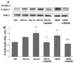 Diabetes-Induced Superoxide Anion and Breakdown of the Blood-Retinal Barrier: Role of the VEGF/uPAR Pathway