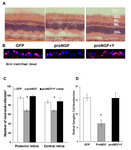 Diabetes and Overexpression of proNGF Cause Retinal Neurodegeneration via Activation of RhoA Pathway