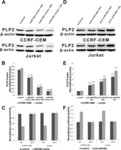 miR-664 negatively regulates PLP2 and promotes cell proliferation and invasion in T-cell acute lymphoblastic leukaemia